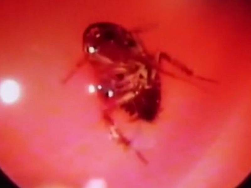 Watch: Doctor pulls live cockroach from woman's skull
