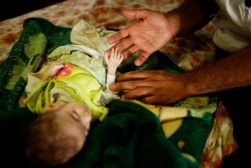 Babies starve as war grinds on in Mosul