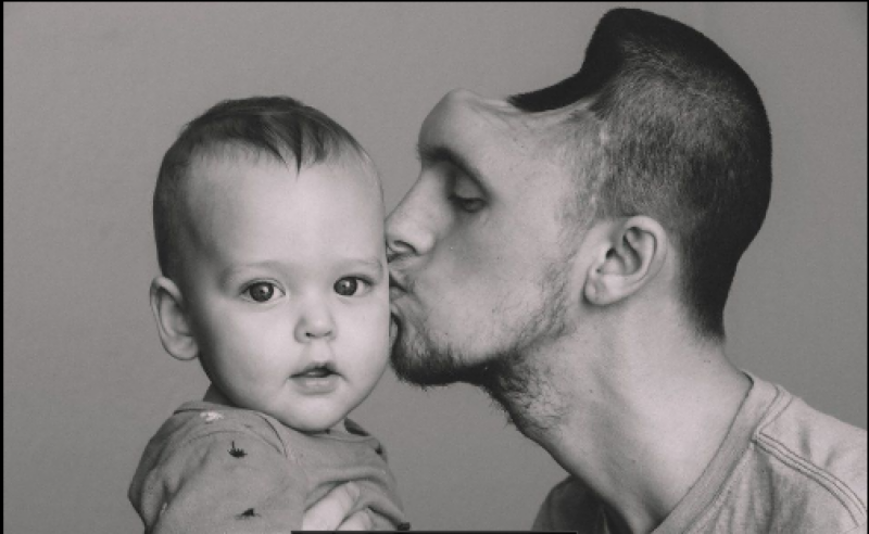 Energy drinks leave new father with hole in his skull