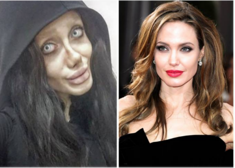 Muslim girl undergoes 50 surgeries, becomes obsessed Angelina Jolie (Pics)