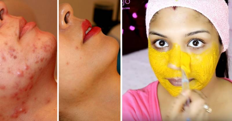 Cure Acne with DIY magical face packs