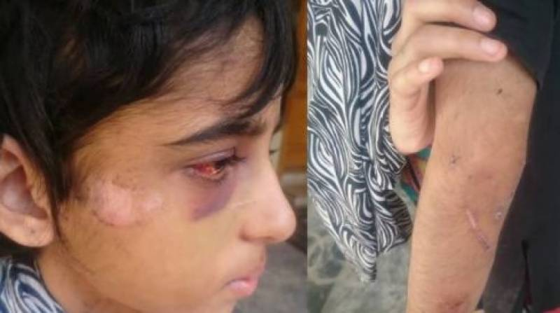 #JusticeForKinza: Army officer, husband booked for torturing child maid