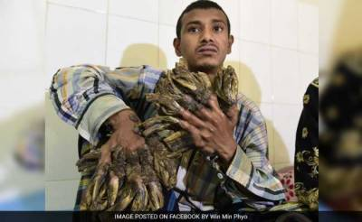 'Tree Man' in Bangladesh Sees Hope After 16 Surgeries