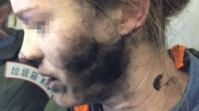 Headphones explosion leaves woman with blisters