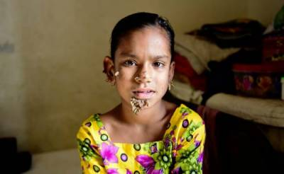"Bangladesh ""Tree Girl"" ends as scared father stop it"
