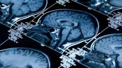 Some changes in lifestyle can reduce Dementia risk: study