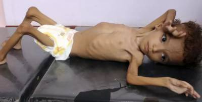 Over seven million children in Yemen face severe food insecurity: UNICEF