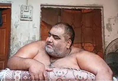 Obese Sadiqabad man Noor ul Hassan dies at Lahore's Shalamar hospital